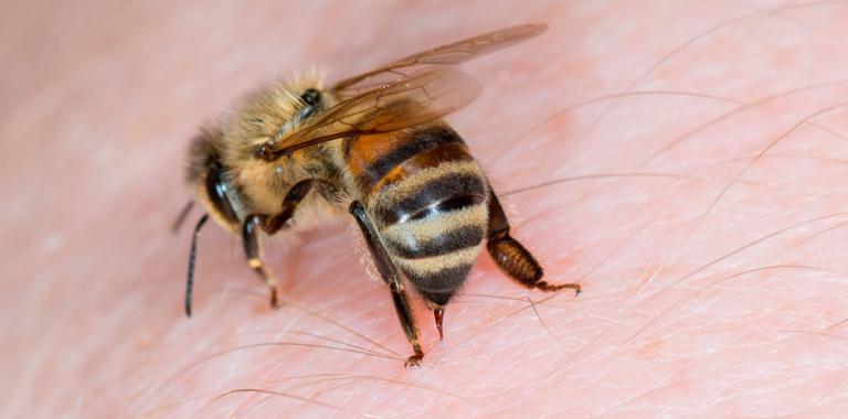 apitoxina abeja picando